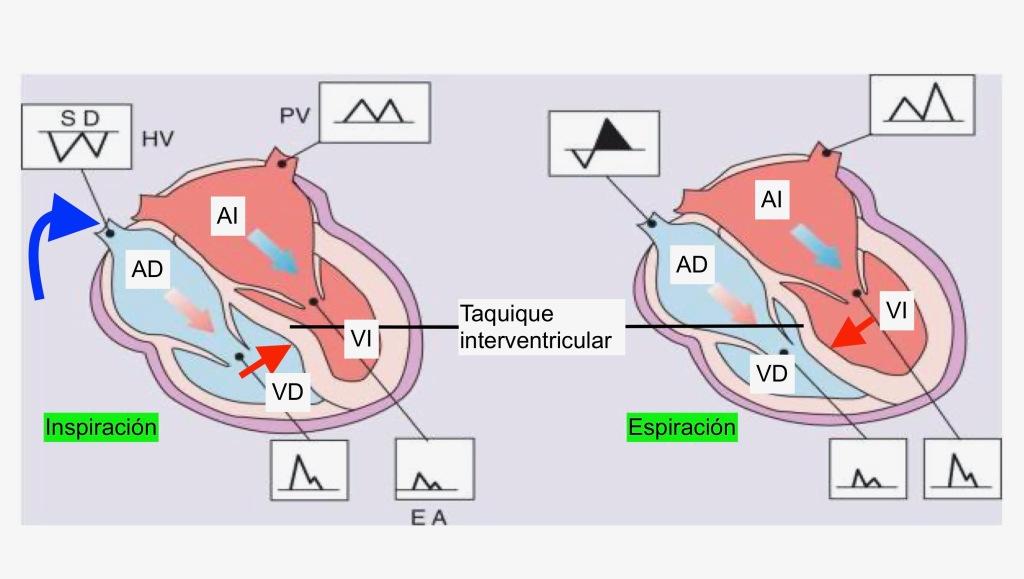 Influencia de la inspiración en el llenado del ventrículo derecho y el desplazamiento del tabique.
